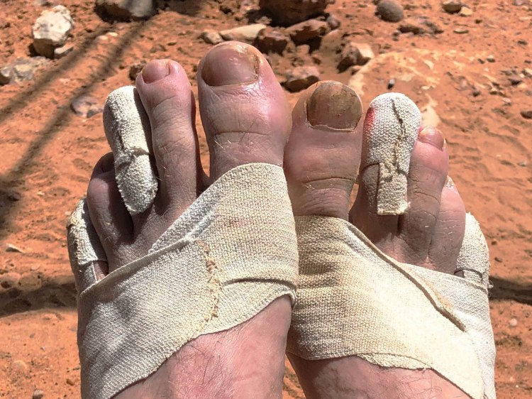 Marathon des Sables type 1 diabetes feet 15